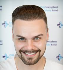Michigan Hair Transplant